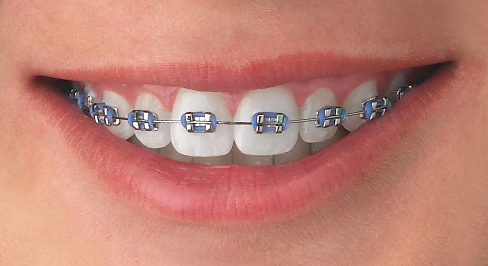 Plastic Wedding Bands >> Metal Braces - Maple Orthodontics